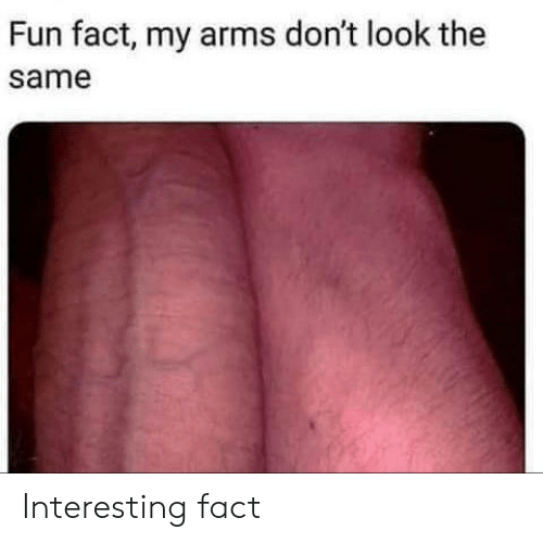 fun fact my arms dont look the same interesting fact 44230773
